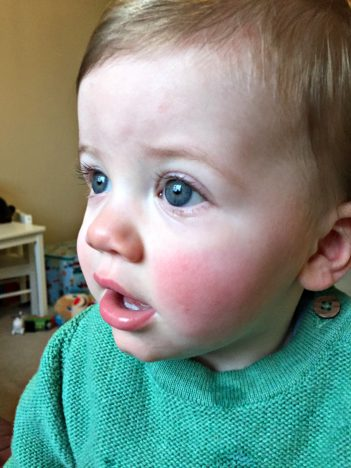 To Piglet, On Your 1st Birthday | Rosy Cheeks http://oddhogg.com