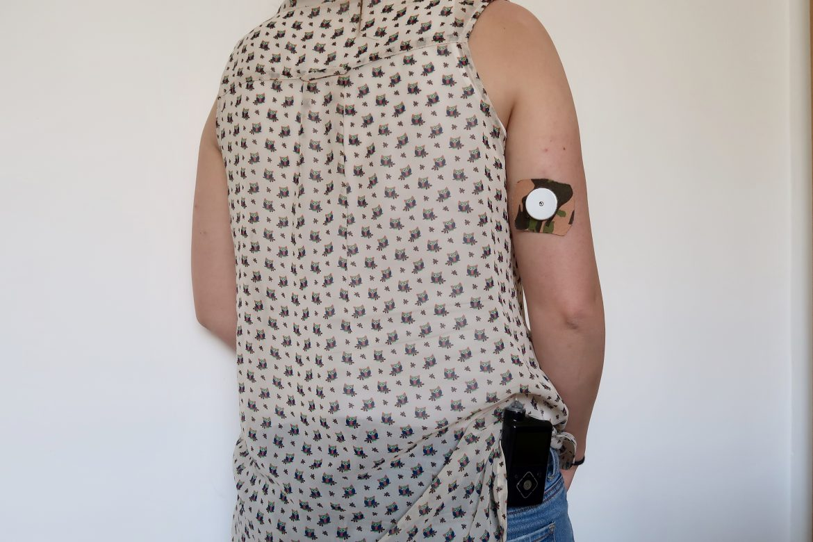 A woman stands facing a white wall. You can see her freestyle libre on her arm with a camouflage patch on it, and an insulin pump on her hip
